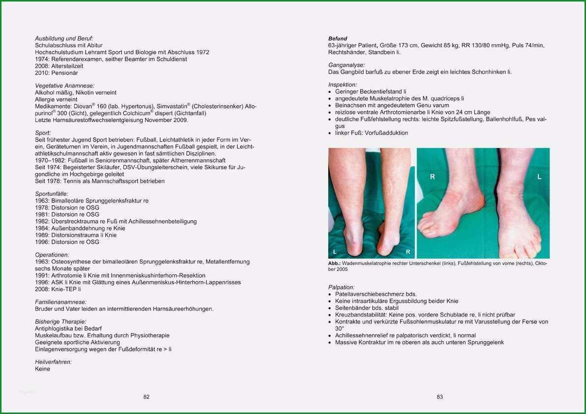 befund physiotherapie vorlage elegant falle in der orthopa